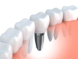 Dental implant hunt valley dentist