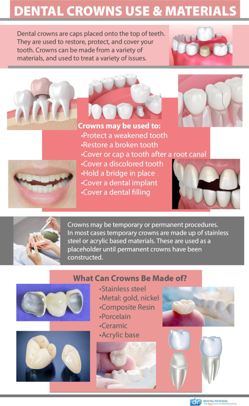 dental crowns use and materials infographic